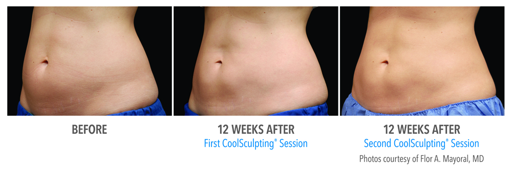 Orange County Coolsculpting And Dualsculpting